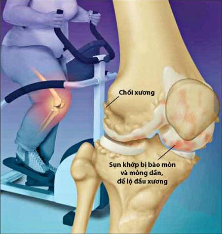 Béo phì gia tăng áp lực lên xương khớp