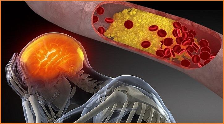 Thừa cân béo phì gây cholesteol cao đau đầu