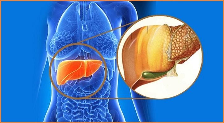 Thừa cân béo phì gây Mỡ nhiễm máu